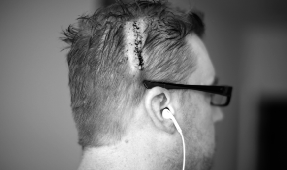 Man who just went through brain surgery. Photo Credit: Kevin Stanchfield / Flickr
